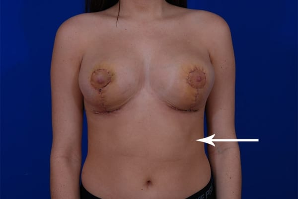 breast reduction revision using liposuction method jpg 853x1280