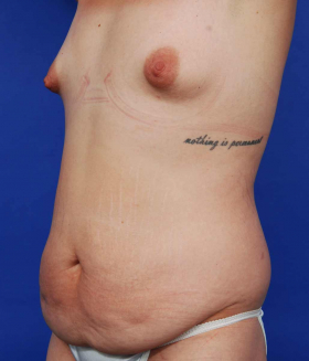 before mommy makeover with tummy tuck abdominoplasty and breast augmentation