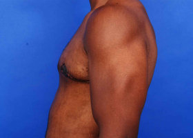 after gynecomastia treatment with skin excision