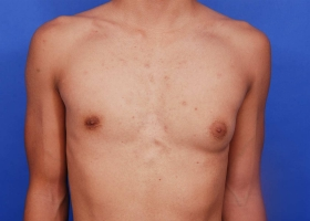 before unilateral gynecomastia surgery