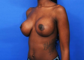 After Breast Augmentation and Reduction