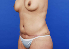 after tummy tuck and liposuction