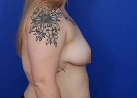 before breast lift with implants