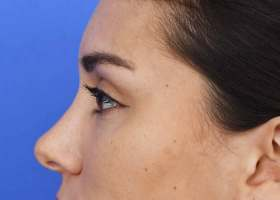 after nose job / rhinoplasty