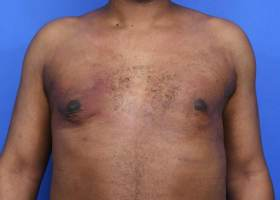 after unilaterial gynecomastia surgery