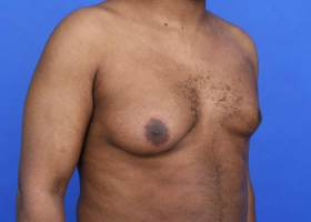 before unilaterial gynecomastia surgery