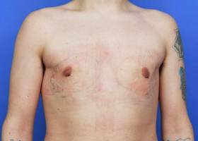 one day after gynecomastia surgery
