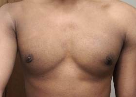 1 week after gynecomastia surgery