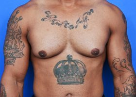 Before Gynecomastia Surgery