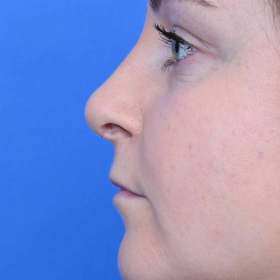 after rhinoplasty nose job