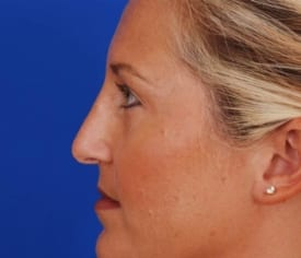 After Nose Job (Rhinoplasty)