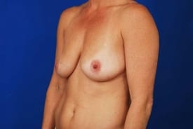 Before Breast Augmentation with Liposuction