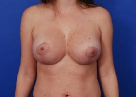 after breast revision surgery