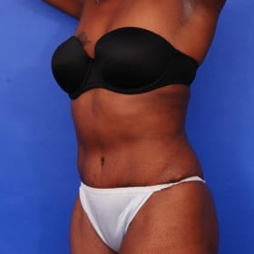 before liposuction and tummy tuck / abdominoplasty