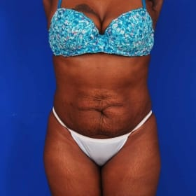 after liposuction and tummy tuck / abdominoplasty