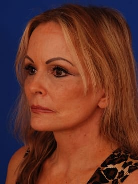after facelift, neck lift, eye lift