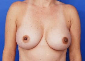 after breast implant size reduction
