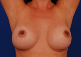 After Breast Revision