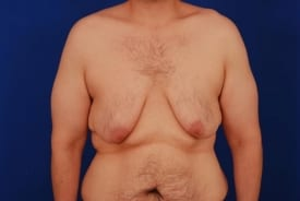 before gynecomastia surgery and weight loss