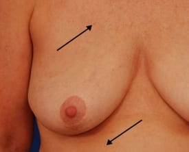 before breast augmentation and revision