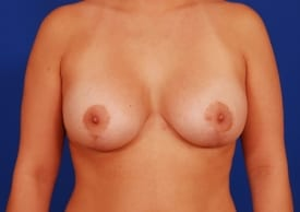 after breast lift with implants