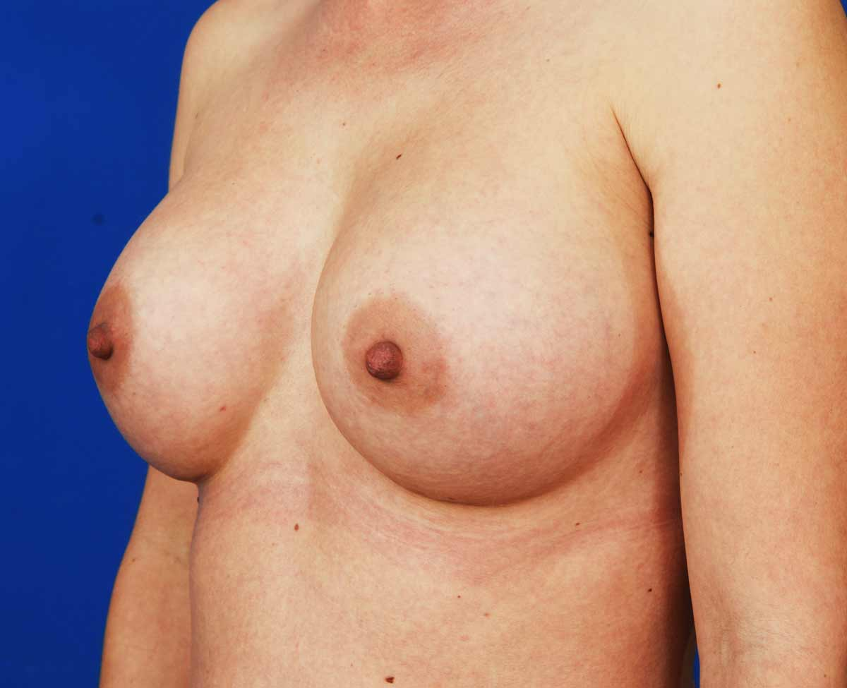 breast inplants photos jpg 853x1280
