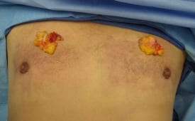 Gynecomastia Gland Removed