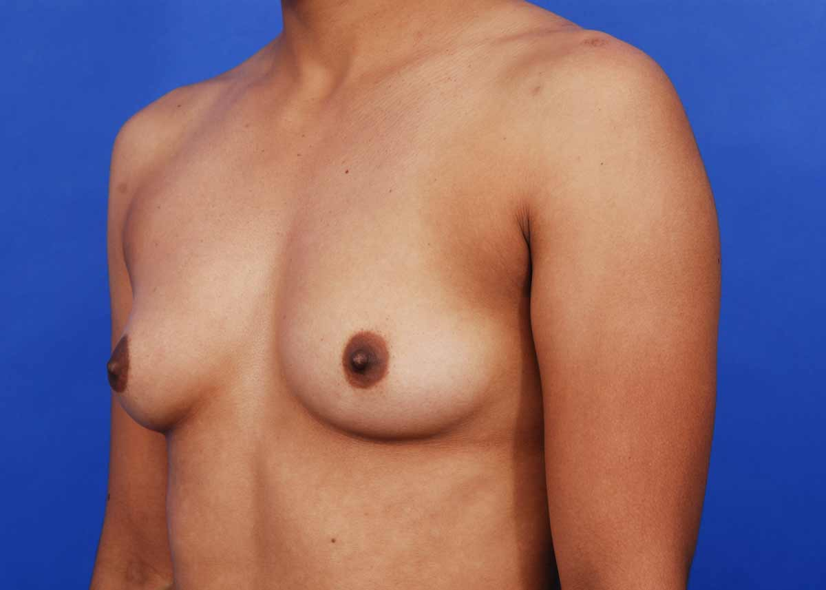 breast augmentation photots jpg 1200x900