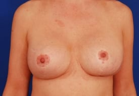 After Breast Revision, Stage 2