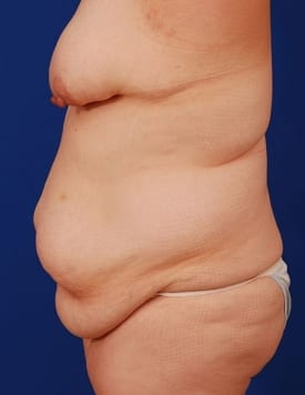 Before Tummy Tuck (Abdominoplasty)