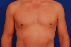 after male liposuction