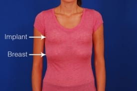 before breast lift with implants, with sizers