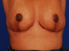after breast revision, 1 week