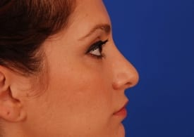 Before Nose Job (Rhinoplasty)