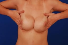 before breast revision of symmastia