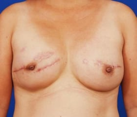 after breast revision and reconstruction