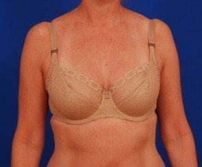 Breast Reduction Costs, Prices & Financing - DocShopcom