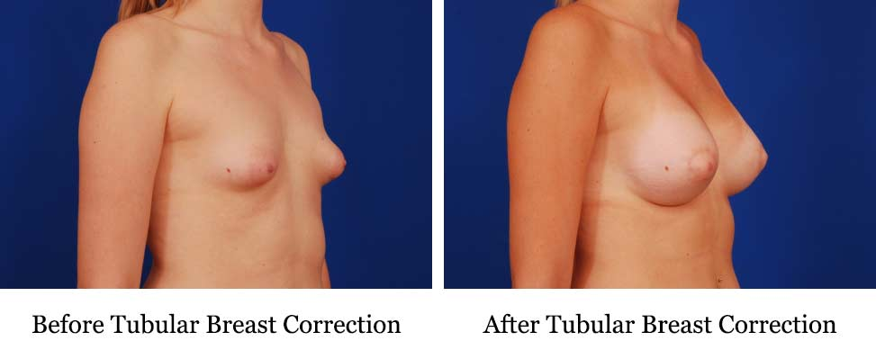 procedure to correct tubular breasts also known as tuberous breasts or breast hypoplasia
