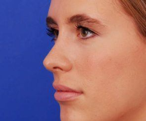 rhinoplasty austin jose job before and after photos - see the results of rhinoplasty procedure at Westlake Plastic Surgery in Austin