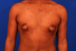 Gynecomastia and Tubular Breast Condition