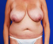 before mommy makeover procedure including breast augmentation liposuction and tummy tuck