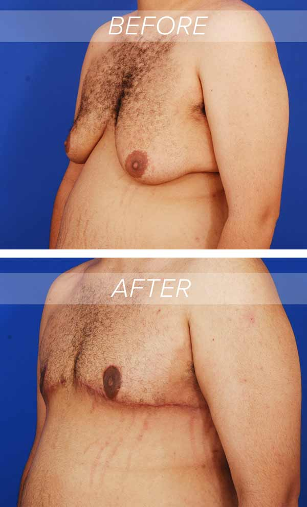 before and after photographs of a gynecomastia surgery patient who had skin excision in addition to standard gynecomastia treatment