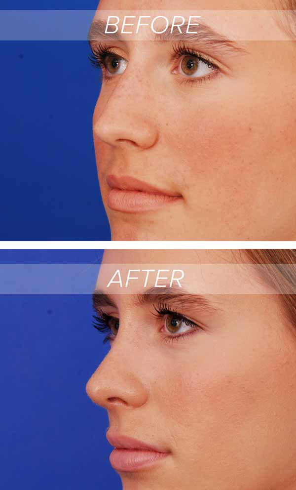 before and after photos of a patient who received austin rhinoplasty procedure also known as nose job austin