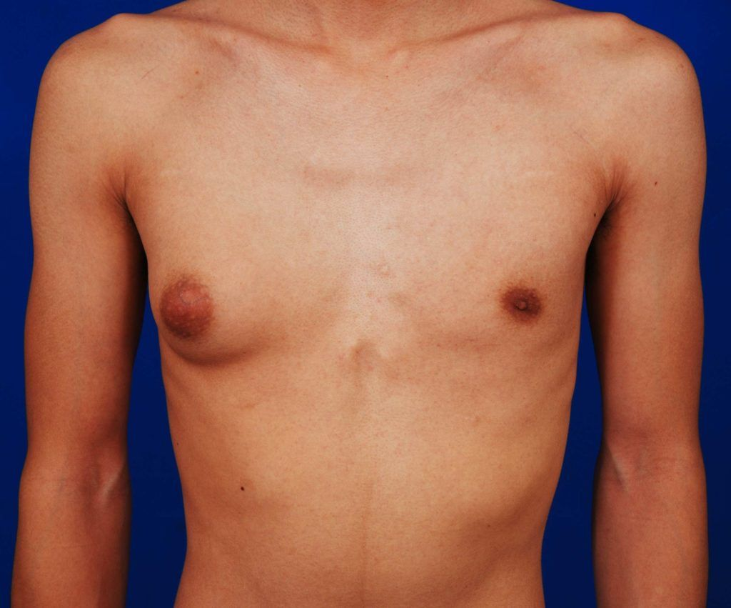 one sided unilateral gynecomastia before treatment