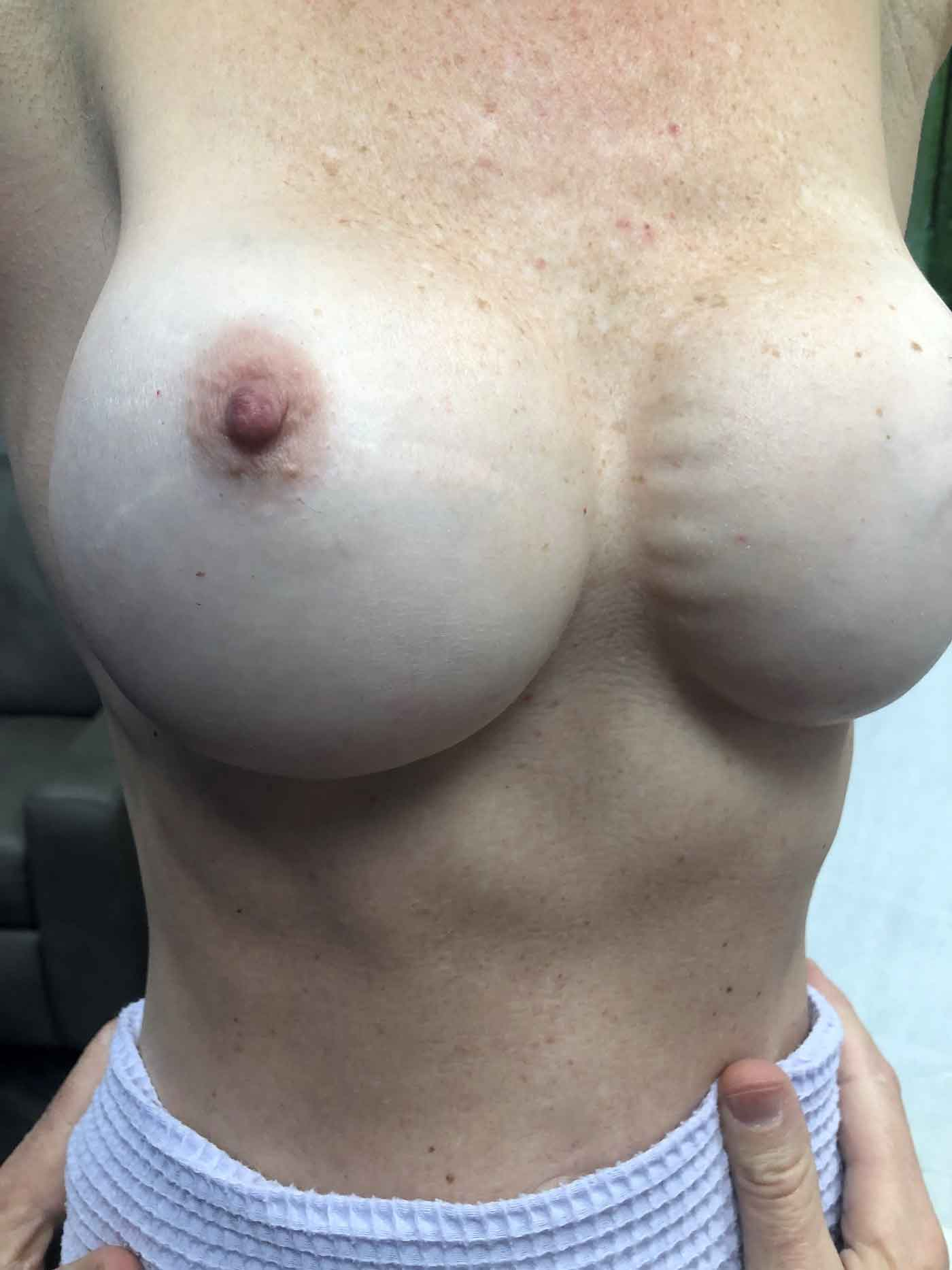 Large Breast Implants Pictures