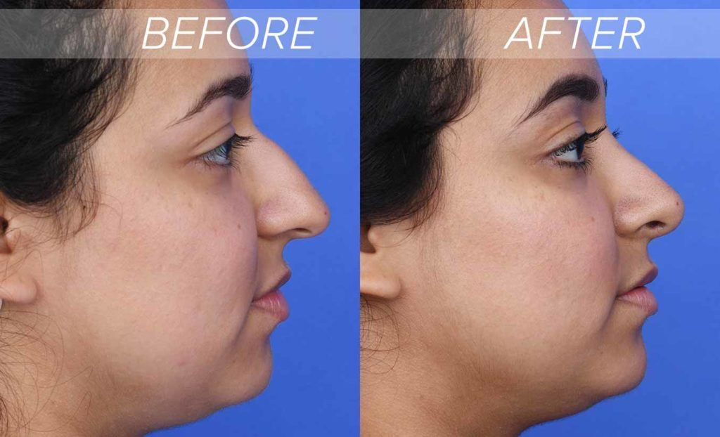 hook nose rhinoplasty before and after photos