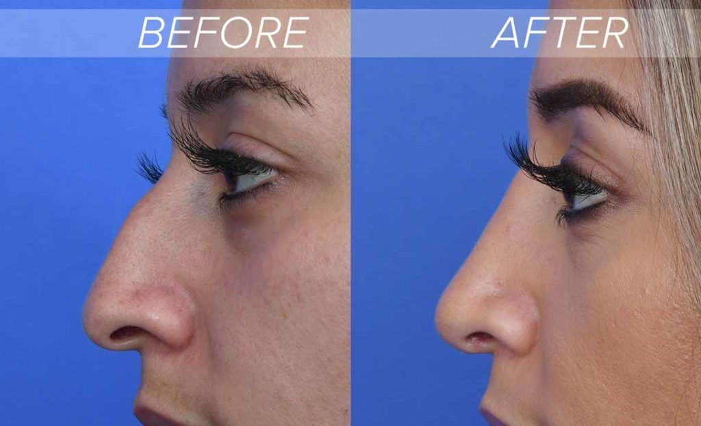 Nose job before and after photo that show a fix for parrot beak nose
