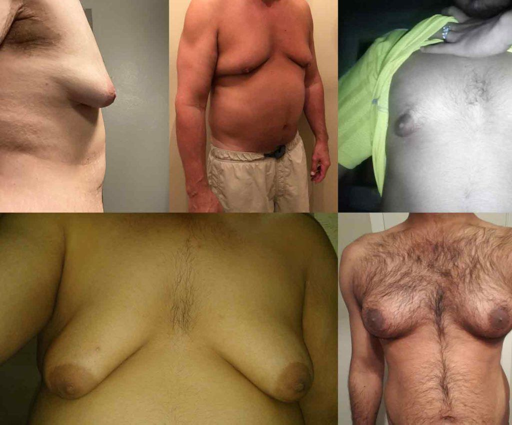 collage of men who ask the same question do I have gynecomastia