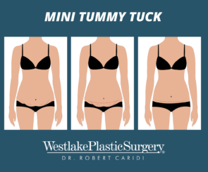 illustration showing three stages of a mini tummy tuck