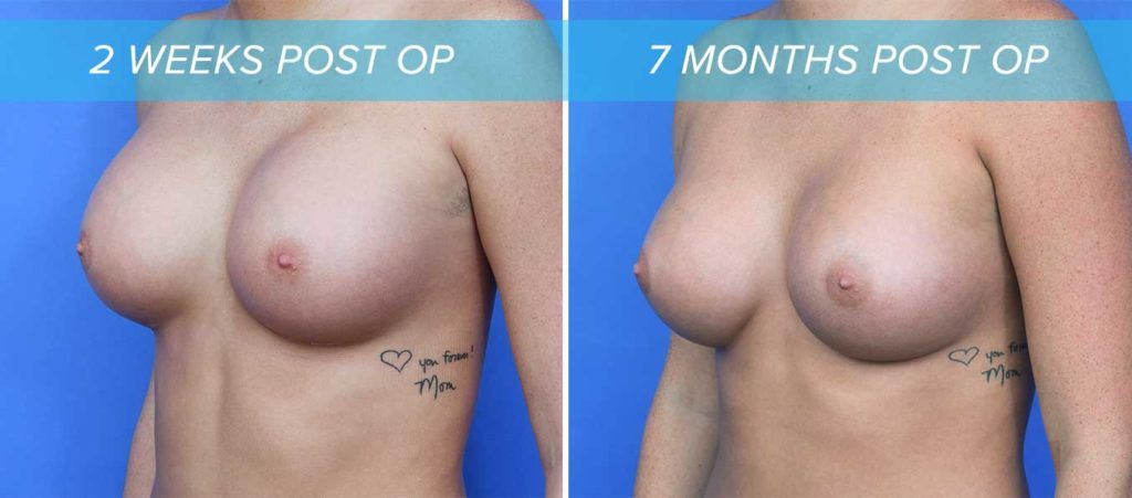 oblique view of how wearing a bra after breast augmentation can improve implant settling